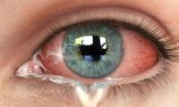 季節アレルギーによる眼のかゆみ、乾き